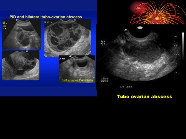 ultrasound guided ovarian cyst aspiration